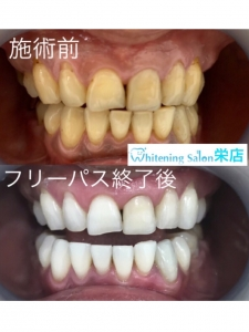 【日常生活でできる!歯の色素沈着を防ぐ方法】