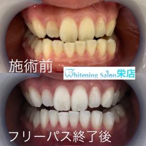 【犬歯の色が濃いのはなぜ?】