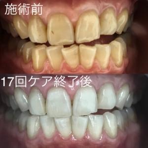【歯磨き粉の使用期限について】
