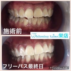 【テトラサイクリン歯のホワイトニング】