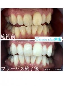 【iQOSなら歯は黄色くならないは間違い!?】