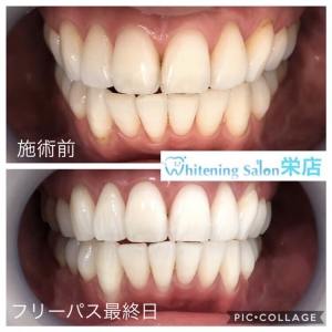 【歯を強くするために】