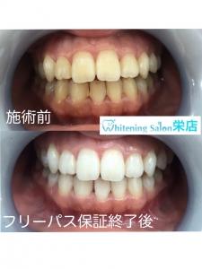 【歯が汚れて見える原因】
