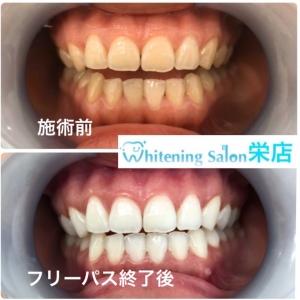 【歯磨きは食後にすぐするべき!?】