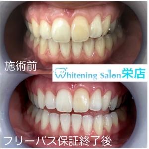 【どんな歯でも白くなるのか】