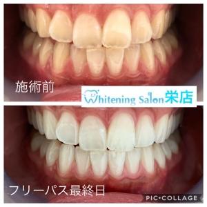 【人気急上昇中!!白い歯はアンチエイジング効果もあり】】
