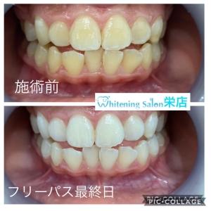 【自分の歯の色に満足できてない方必見】