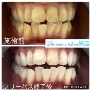 【白い歯を手に入れませんか?】