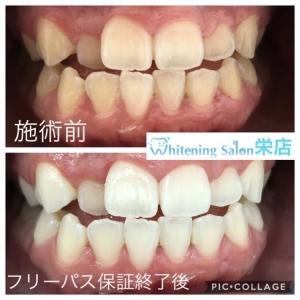 【白い歯の基準とは】