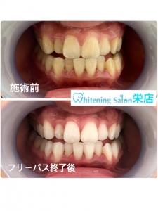 【歯磨き粉を選ぶ時のポイント②】