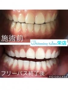 【歯磨きの後のうがいは何回くらいがベスト?!】