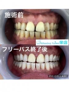 【歯と口に関する言い伝え】