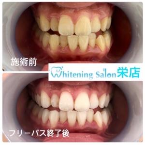 【黒い歯石を放置すると危険!?】