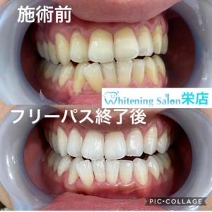 【一般人も歯が命な時代!?】