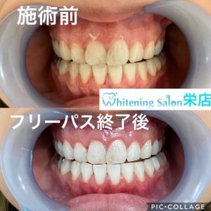 【正しい歯ブラシの交換時期】