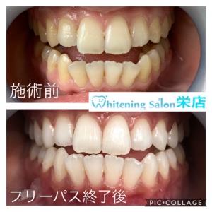 【白い歯の基準】