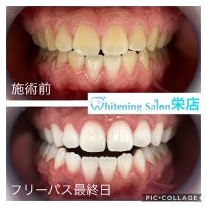 【白い歯を保つコツ】