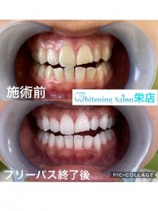 【智歯周囲炎とは?】