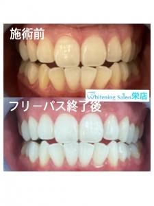 【虫歯の原因は一つではありません】