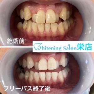 【歯茎の痛みは病気?】