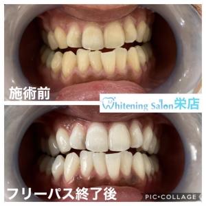 【喫煙がもたらす歯への影響】