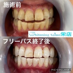 【うがいで虫歯予防】