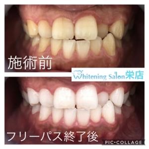 【もっと綺麗な歯を目指すために】