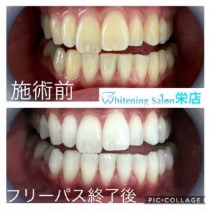 【歯が黄ばんでしまう原因】