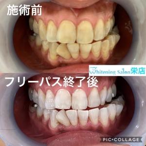 【なぜ歯がしみるのか】