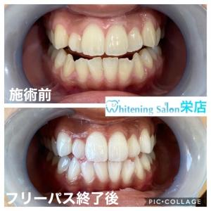 【虫歯や歯周病の原因】