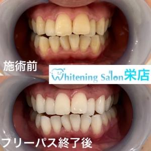 【歯の隙間や溝が黒いとき・・】