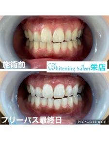 【虫歯は自然に治る?】