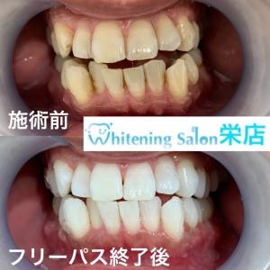 【歯磨き粉のうがいは1回がいい?】