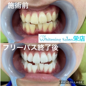 【歯周病の恐ろしさ】
