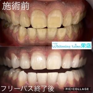 【八重歯はなぜできる?】