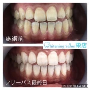 【エナメル質が薄いと歯の黄ばみの原因になる?】