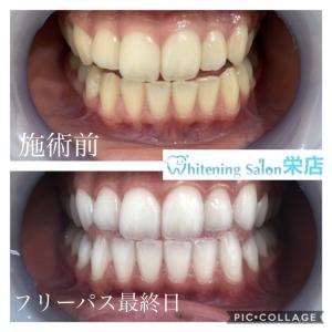 【こんな症状が出たら歯周病かも?】