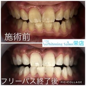 【虫歯予防にはフッ素が効果的!】