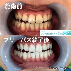 【歯間清掃用具使っていますか?】