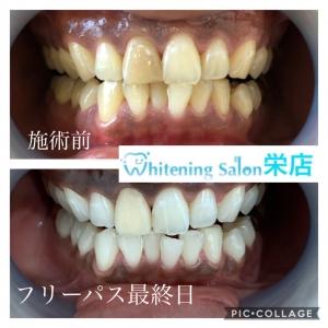 【歯の変色について】