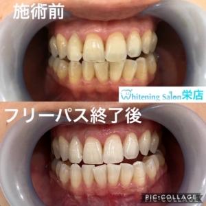 【歯の重要性】