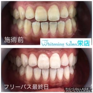 【歯の色の個人差】
