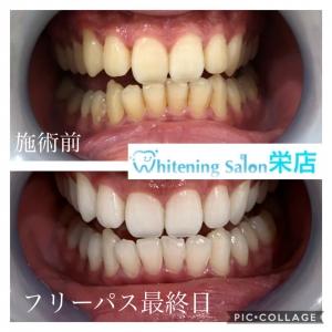 【歯の白さの違い】