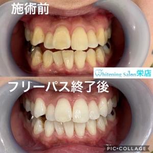 【綺麗な歯を作る習慣】