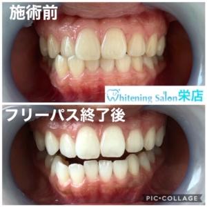 【歯を予防しよう】