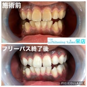【歯の着色の原因】