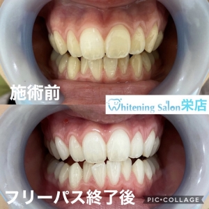 【こんな歯磨きは逆効果!】