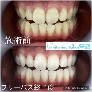 【予防歯科の重要性】