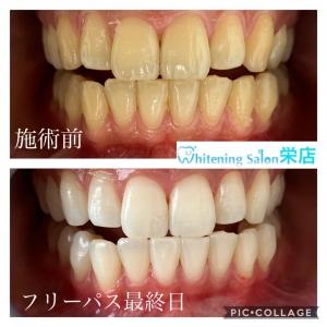 【虫歯の発生】