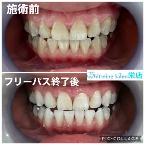 【歯のはじまり】